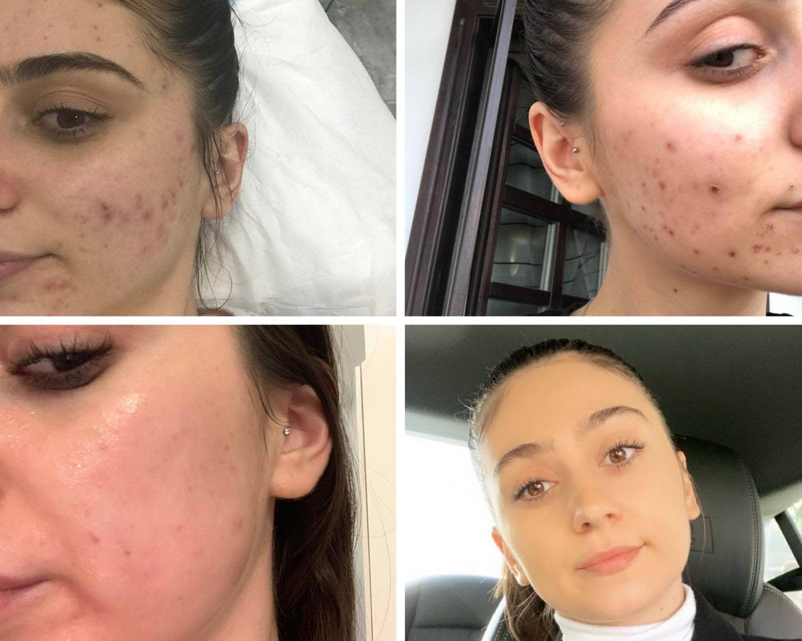 Skin Before After Image