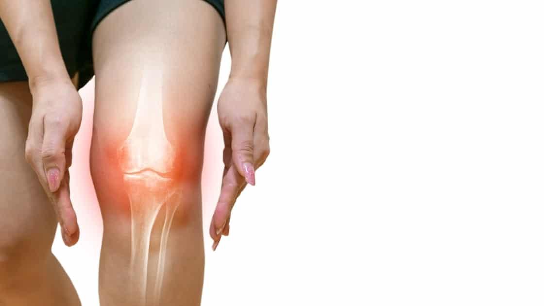 Arthritis Inflammation